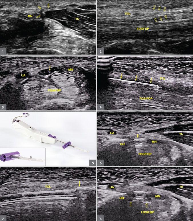 Ultrasound-guided carpal tunnel release