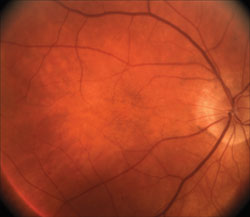Ophthalmic findings such as dry AMD, pictured here, can serve as a springboard to a discussion of smoking cessation.