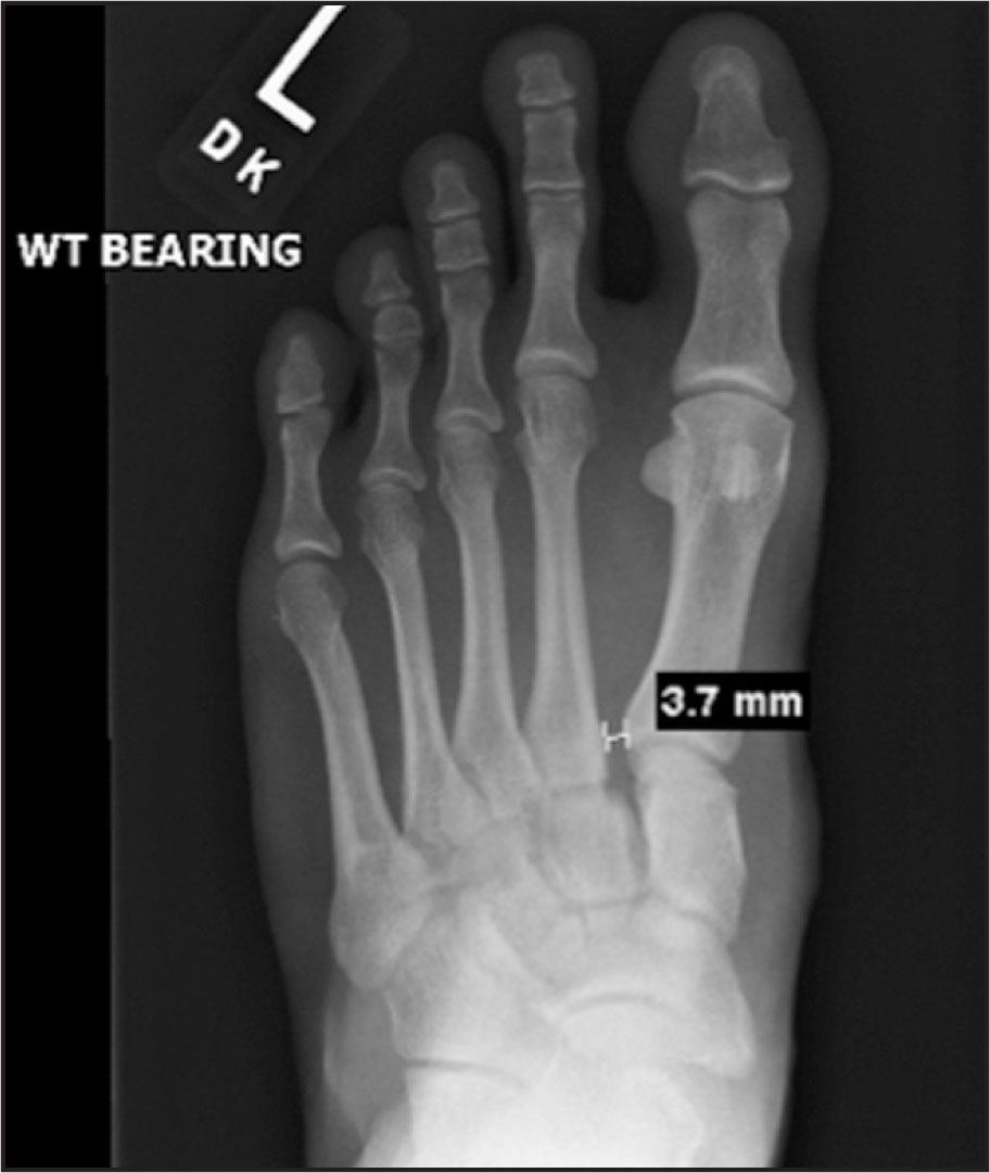 Left Foot Weight (WT) Bearing AP View. Note the 3.7-mm Diastasis Between the First and Second Metatarsals.