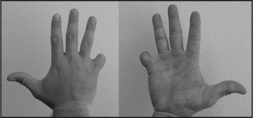 The Affected Hand 60 Days Postsurgery.