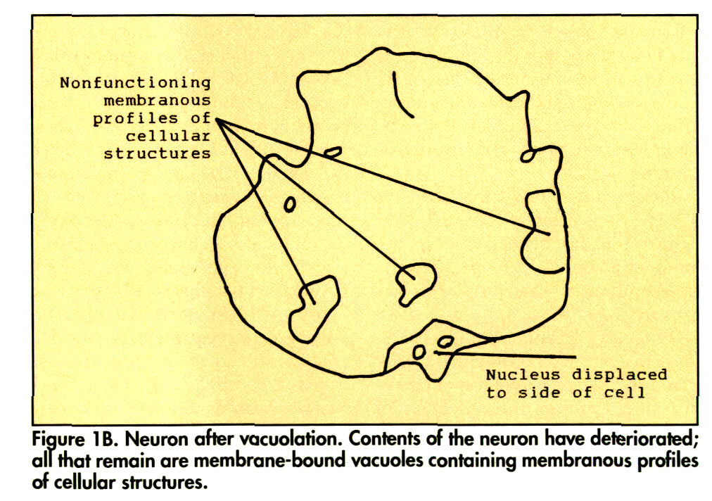 Figure 1B. Neuron after vacuolation. Contents of the neuron have deteriorated; all that remain are membrane-bound vacuoles containing membranous profiles of cellular structures.
