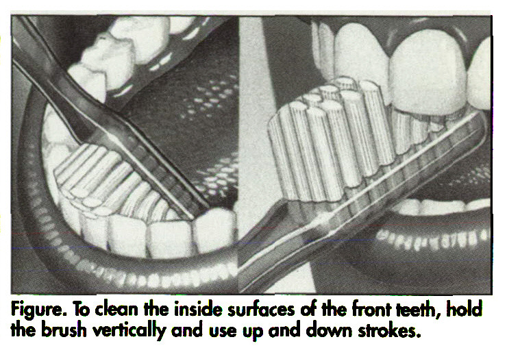 Figure. To clean the inside surfaces of the front teeth, hold the brush vertically and use up and down strokes.