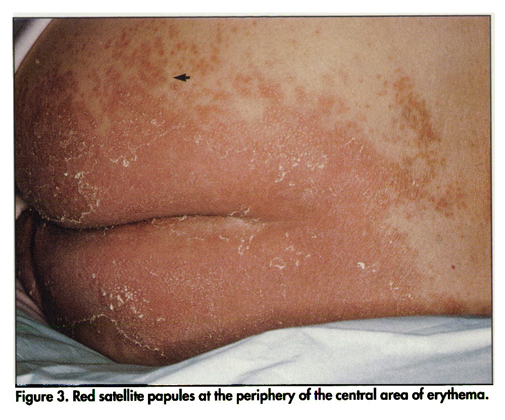 Figure 3. Red satellite papules at the periphery of the central area of erythema.