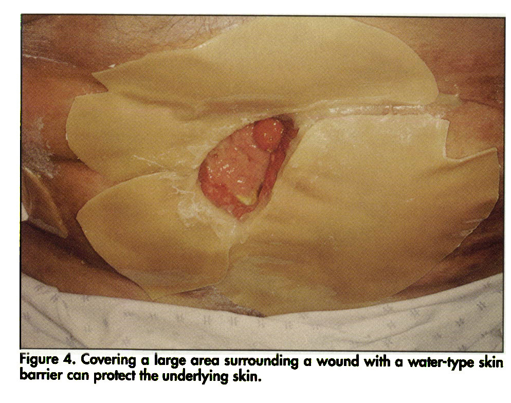 Figure 4. Covering a large area surrounding a wound with a water-type skin barrier can protect the underlying skin.
