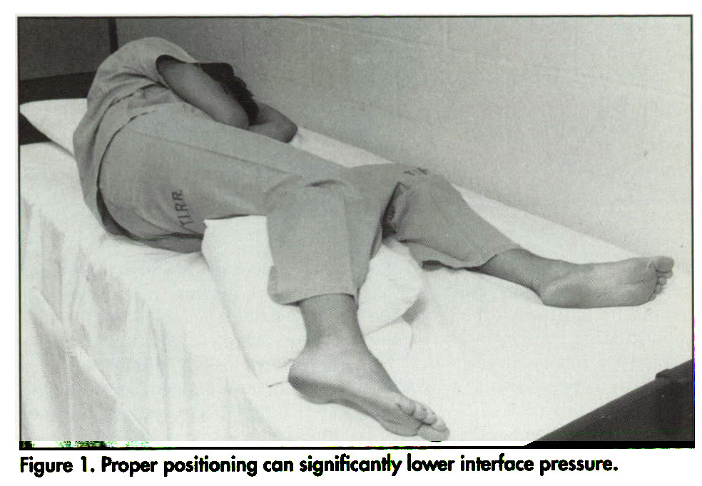 Figure 1. Proper positioning can significantly lower interface pressure.