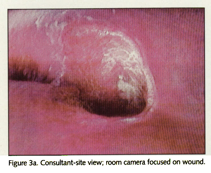 Figure 3a. Consultant-site view; room camera focused on wound.