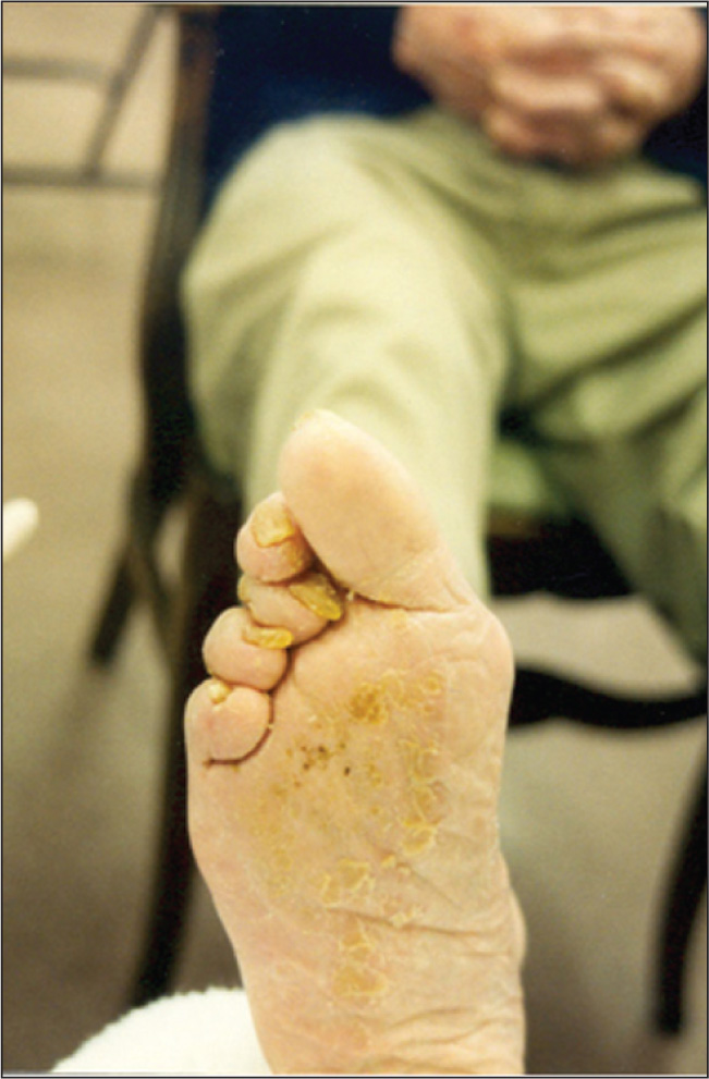 Onychomycosis, Nail Fungus that Causes Changes in Nail Color, Texture, and Integrity.Photo Credit: Teresa J. Kelechi, PhD, RN, GCNS-BC, CWCN.