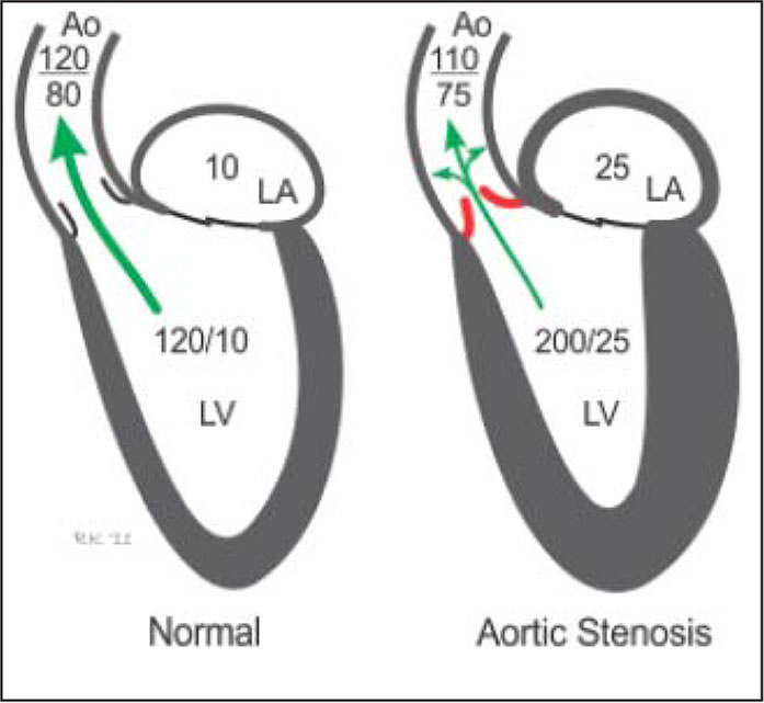 Comparison of a normal heart to a heart with aortic stenosis.Note. LA = left atrium; LV = left ventricle. Reprinted with permission from Richard E. Klabunde, PhD (access http://www.cvphysiology.com).