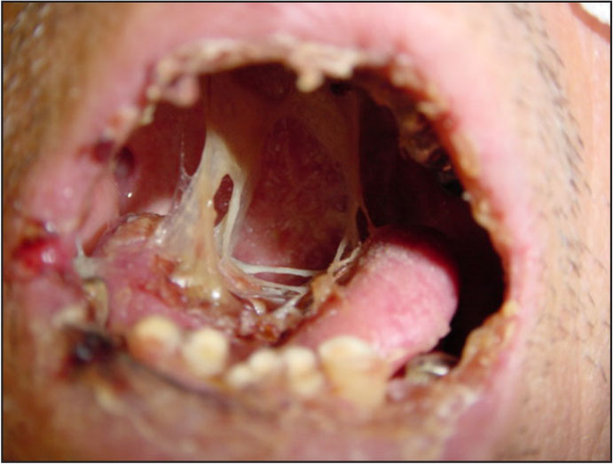 Membranous substances and phlegm in a non-oral feeding patient's oral mucosa.