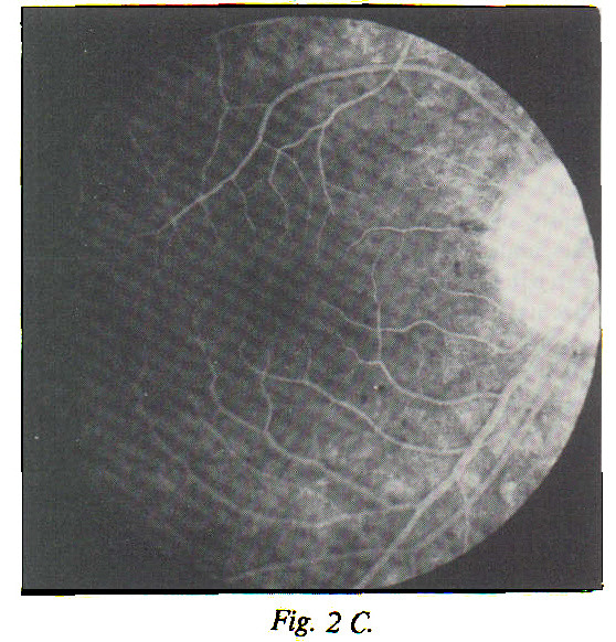 Fig. 2 C. The macular fluorescence decreases again, together with the disappearance of the choroidal fluorescence in the recirculation phase. This picture was taken 7 minutes after first appearance of dye.