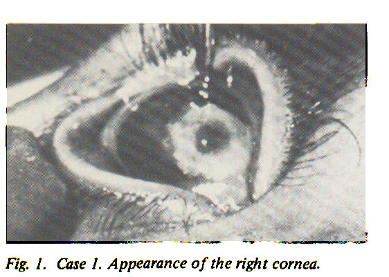 Fig. 1. Case 1. Appearance of the right cornea.