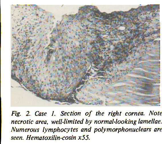 Fig. 2. Case 1. Section of the right cornea. Note necrotic area, well-limited by normal-looking lamellae. Numerous lymphocytes and polymorphonuclears are seen. Hematoxilin-cosin x55.