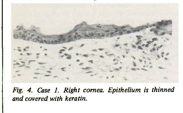 Fig. 4. Case 1. Right cornea. Epithelium is thinned and covered with keratin.