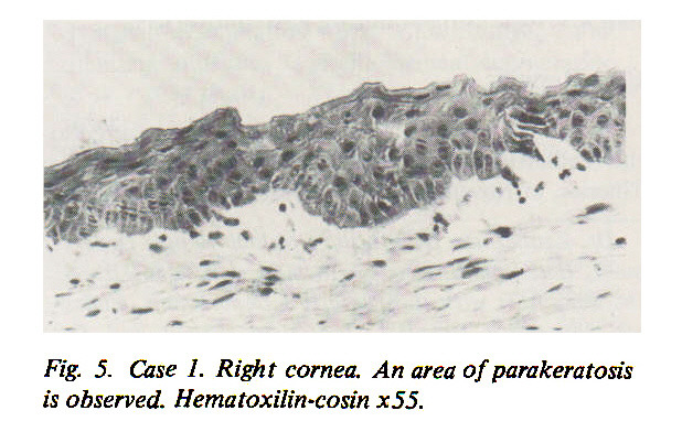 Fig. 5. Case 1. Right cornea. An area of parakeratosis is observed. Hematoxilin-cosin x55.