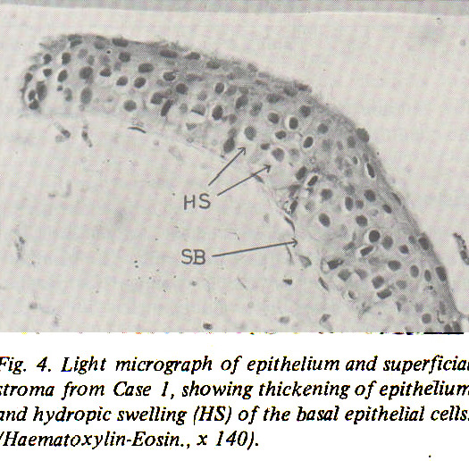 Fig. 4. Light micrograph of epithelium and superficial stroma from Case I, showing thickening of epithelium and hydropic swelling (HS) of the basal epithelial cells. (Haematoxylin-Eosin., x i40).