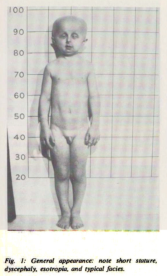 Fig. 1: General appearance: note short stature, dyscephaly, esotropia, and typical fades.