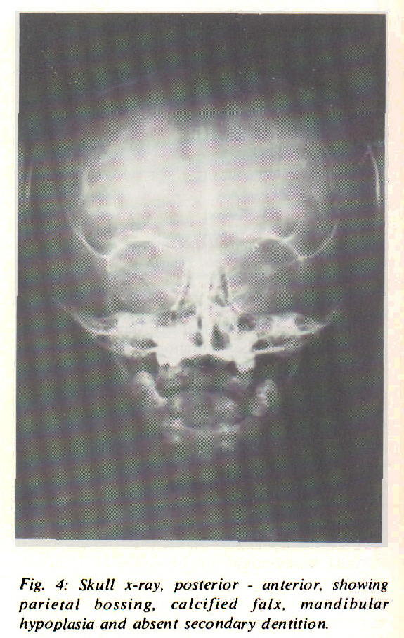 Fig. 4: Skull x-ray, posterior - anterior, showing parietal bossing, calcified falx, mandibular hypoplasia and absent secondary dentition.