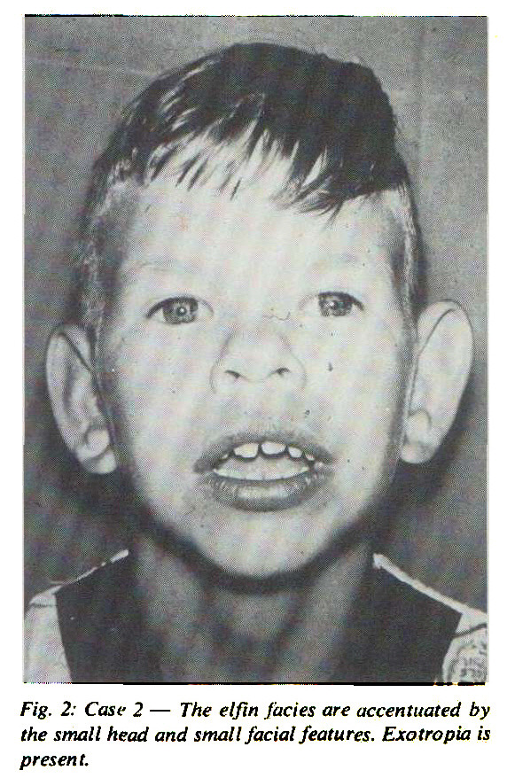 Fig. 2: Case 2 - The elfin facies are accentuated by the small head and small facial features. Exotropia is present.
