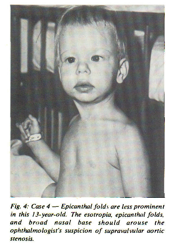 Fig. 4: Case 4 - Epican thai folds are less prominent in this i3-year-old. The esotropia, epican thai folds, and broad nasal base should arouse the ophthalmologist's suspicion of supravalvular aortic stenosis.