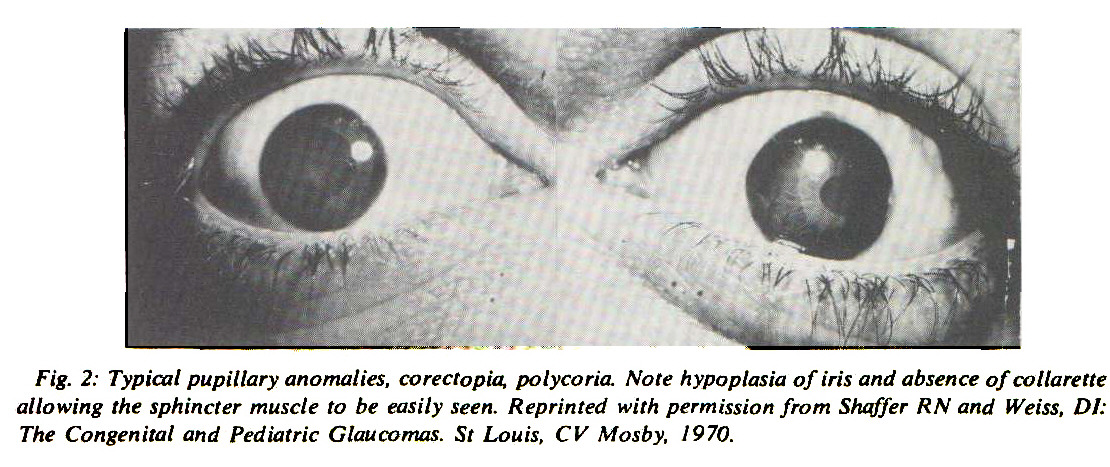 Fig. 2: Typical pupillary anomalies, corectopia, polycoria. Note hypoplasia of iris and absence of collarette allowing the sphincter muscle to be easily seen. Reprinted with permission from Shaffer RN and Weiss, DI: The Congenital and Pediatric Glaucomas. St Louis, CV Mosby, i970.