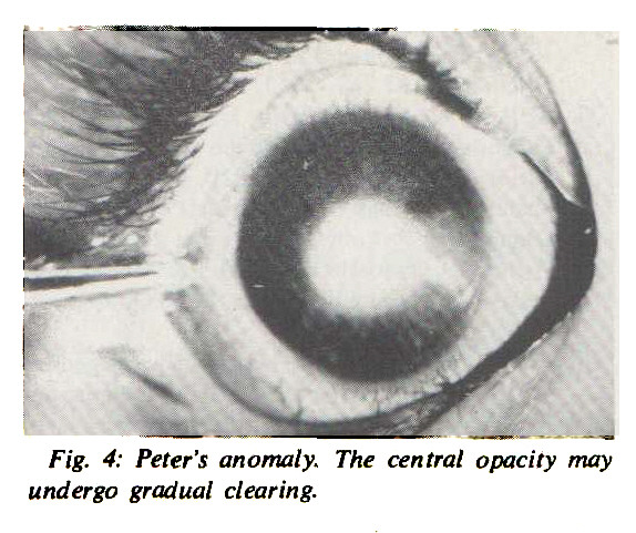 Fig. 4: Peter's anomaly. The central opacity may undergo gradual clearing.