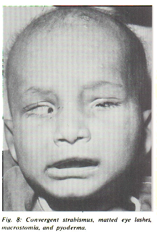 Fig. 8: Convergent strabismus, matted eye lashes, macrostomia, and pyoderma.