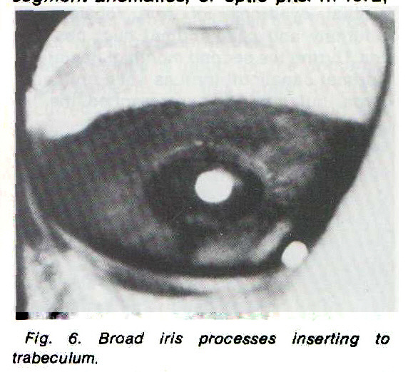 Fig. 6. Broad iris processes inserting to trabeculum.