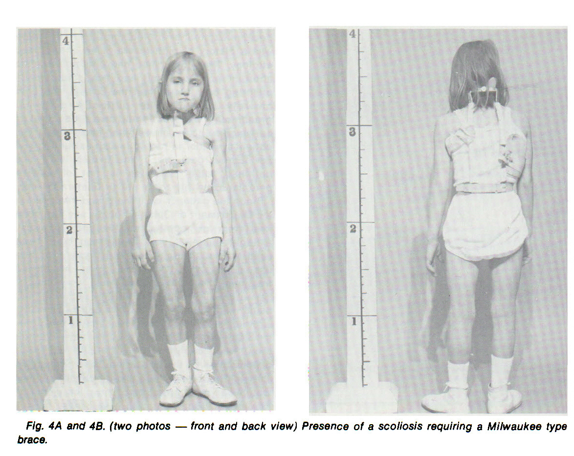 Fig. 4A and 4B. (two photos - front and back view) Presence of a scoliosis requiring a Milwaukee type brace.