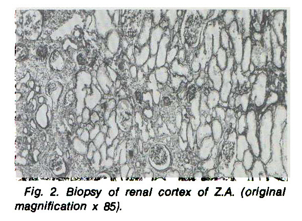 Fig. 2. Biopsy of renal cortex of Z.A. (original magnification x 85).