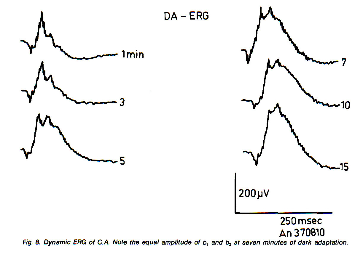 Fig. 8. Dynamic ERG of C.A. Note the equal amplitude of b, and b, at seven minutes of dark adaptation.