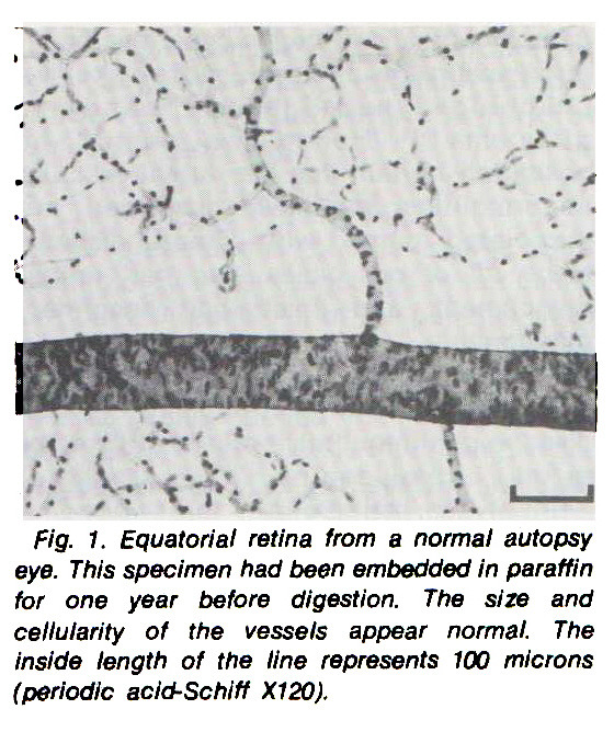 Fig. 1. Equatorial retina from a normal autopsy eye. This specimen had been embedded in paraffin for one year before digestion. The size and cellularity of the vessels appear normal. The inside length of the line represents 100 microns (periodic acid-Schiff X120).