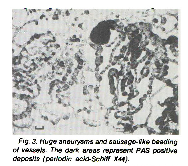 Fig. 3. Huge aneurysms and sausage- like beading of vessels. The dark areas represent PAS positive deposits (periodic acid-Schiff X44)