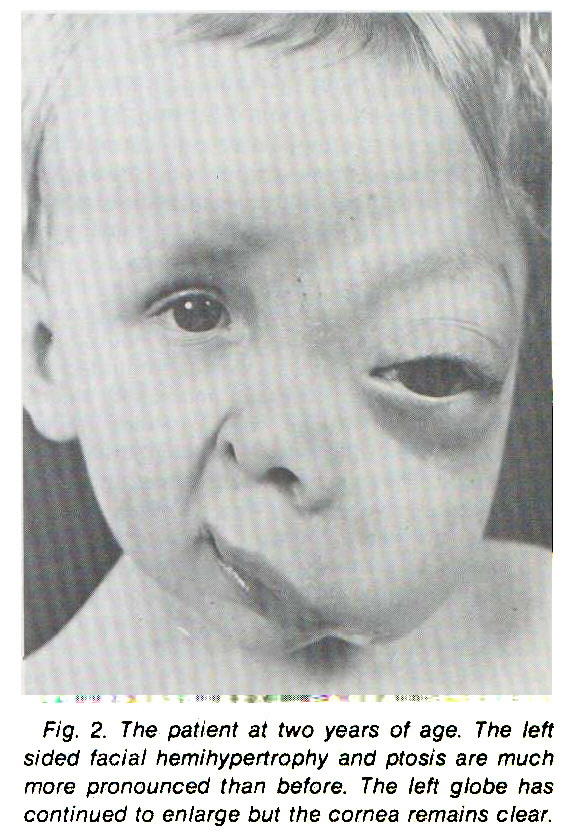 Fig. 2. The patient at two years of age. The IeH sided facial hemihypertrophy and ptosis are much more pronounced than before. The ten globe has continued to enlarge but the cornea remains clear.