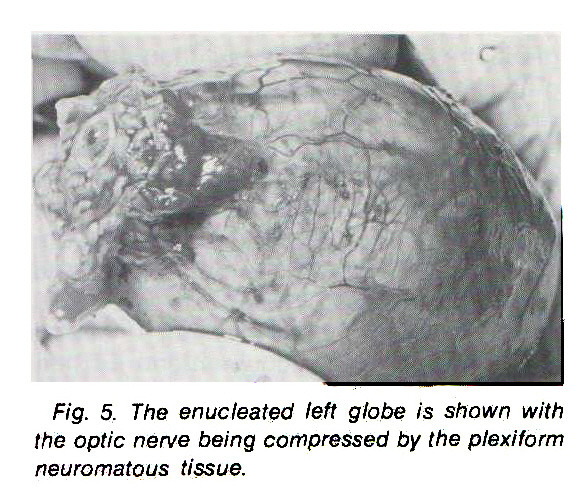 Fig. 5. The enucleated left globe is shown with the optic nerve being compressed by the plexiform neuromatous tissue.