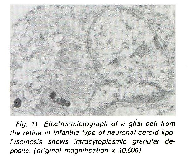Fig. 11. Electronmicrograph of a glial cell from the retina in infantile type of neuronal ceroid- lipofuscinosis shows intracytoplasmic granular deposits, (original magnification x 10.000)