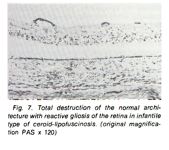 Fig. 7. Total destruction of the normal architecture with reactive gliosis of the retina in infantile type of ceroid-lipofuscinosis, (original magnification PAS x 120)