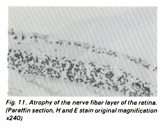 Fig. 1 1 . Atrophy of the nerve fiber layer of the retina. (Paraffin section, ? and E stain original magnification x240)