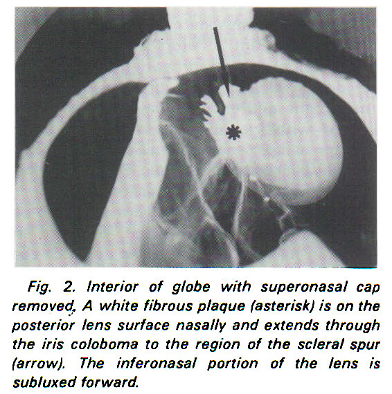 Fig. 2. Interior of globe with superonasal cap removed. A white fibrous plaque (asterisk) is on the posterior lens surface nasally and extends through the iris coloboma to the region of the scleral spur (arrow). The inferonasal portion of the lens is subluxed forward.