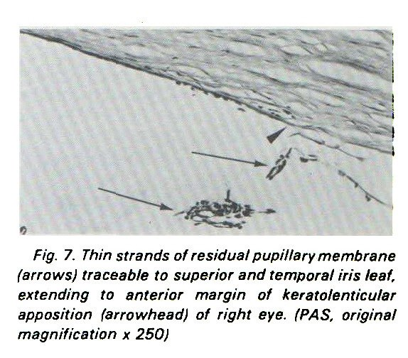 Fig. 7. Thin strands of residual pupillary membrane (arrows) traceable to superior and temporal iris leaf, extending to anterior margin of keratolenticular apposition (arrowhead) of right eye. (PAS, original magnification x 250)