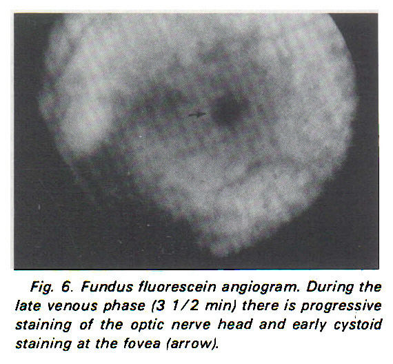 Fig. 6. Fundus fluorescein angiogram. During the late venous phase (3 1/2 min) there is progressive staining of the optic nerve head and early cystoid staining at the fovea (arrow).