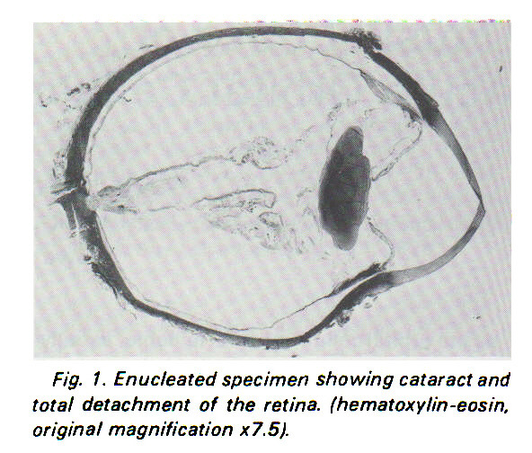 Fig. 1. Enucleated specimen showing cataract and total detachment of the retina, (hematoxylin -eos in, original magnification x7.5).