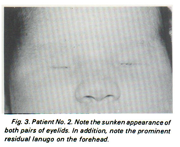 Fig. 3. Patient No. 2. Note the sunken appearance of both pairs of eye/ids. in addition, note the prominent residua/ lanugo on the forehead.