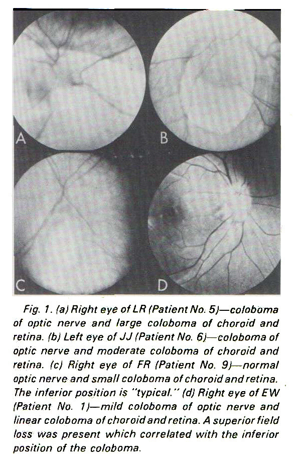 """Fig. 1. (a) Right eye of LR (Patient No. 5i- coloboma of optic nerve and large coloboma of choroid and retina, (b) Left eye of JJ I Patient No. 6)- coloboma of optic nerve and moderate coloboma of choroid and retina, (c) Right eye of FR iPatient No. 9)- normal optic nerve and small coloboma of choroid and retina. The inferior position is """"typical. """" (d) Right eye of EW (Patient No. 1 ) - mild coloboma of optic nerve and linear coloboma of choroid and retina. A superior field loss was present which correlated with the inferior position of the coloboma."""
