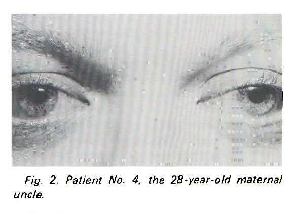 Fig. 2. Patient No. 4, the 28-year-old maternal uncle.