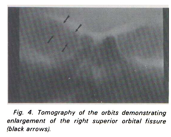 Fig. 4. Tomography of the orbits demonstrating enlargement of the right superior orbital fissure (black arrows).