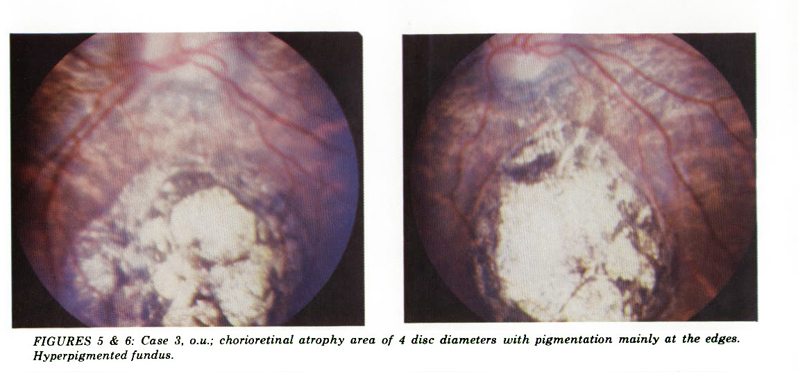 FIGURES 5 & 6: Case 3. o.u.; chorioretinal atrophy area of 4 disc diameters with pigmentation mainly at the edges. Hyperpigmented fundus.