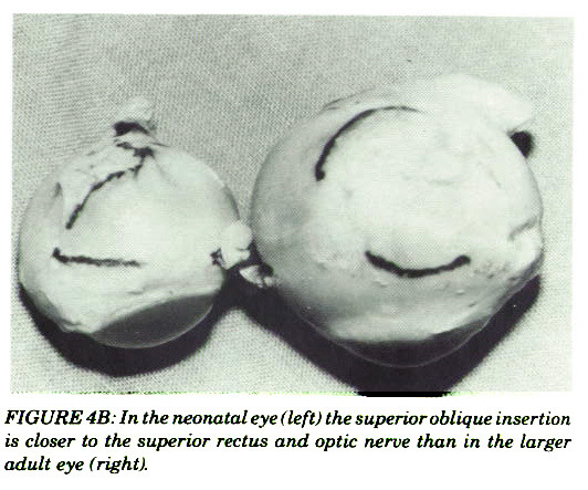 FIGURE 4B: In the neonatal eye (left) the superior oblique insertion is closer to the superior rectus and optic nerve than in the larger adult eye (right).