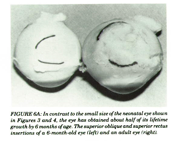 FIGURE 6A: In contrast to the small size of the neonatal eye shown in Figures 3 and 4, the eye has obtained about half of its lifetime growth by 6 months of age. The superior oblique and superior rectus insertions of a 6-month-old eye (left) and an adult eye (right).