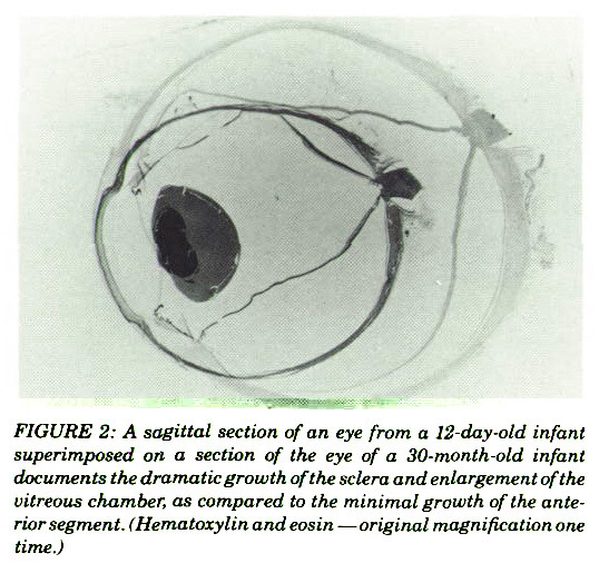 FIGURE 2: A sagittal section of an eye from a 12-day -old infant superimposed on a section of the eye of a 30-month-old infant documents the dramatic growth of the sclera and enlargement of the vitreous chamber, as compared to the minimal growth of the anterior segment. (Hematoxylin andeosin - original magnification one time.)