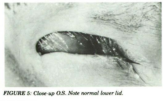 FIGURE 5: Close-up O.S. Note normal lower lid.